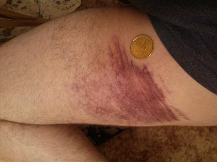 See the loonie on my leg for a sense of scale!